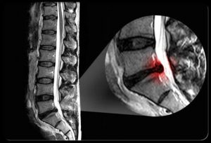 Sciatic Pain Shown IN MRI