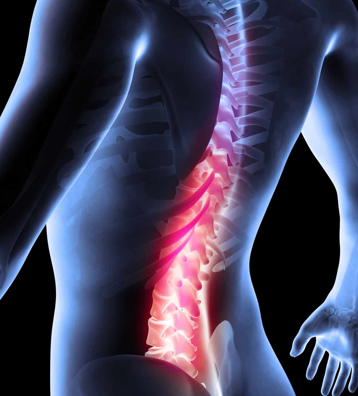 How to Effectively Treat Lower Back Pain