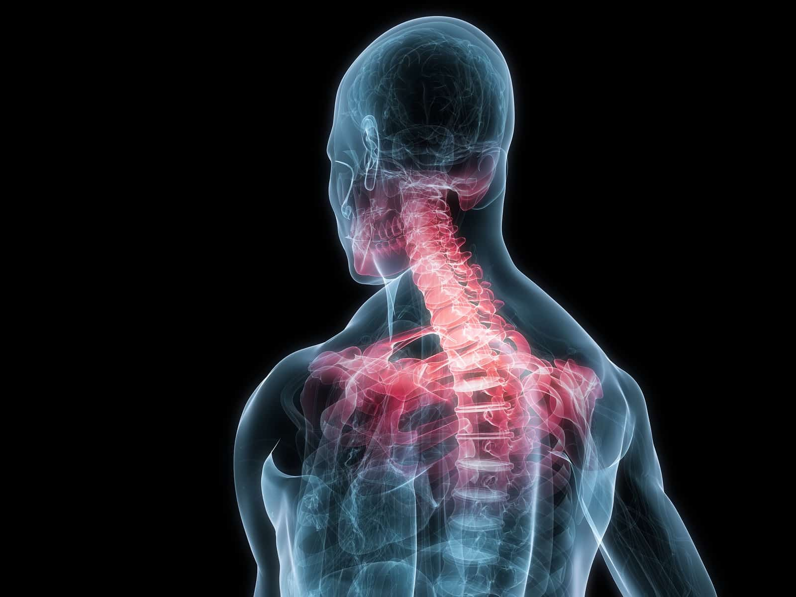 How to Recognize and Treat Neck Pain