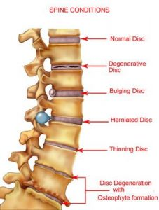 Sciatic Pain Spine Conditions