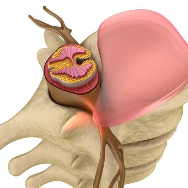 Sciatica Pain Relief Program