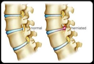 Herniated Compared To Normal Disk