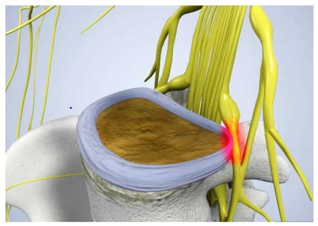 Sciatic Pain from Herniated Disk