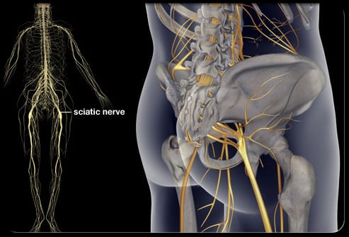 Sciatic Nerve Pain and Anatomy