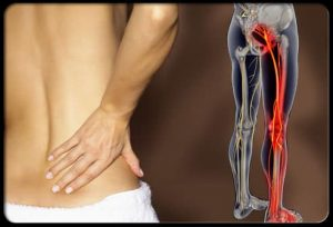 Low Back and Sciatic Pain