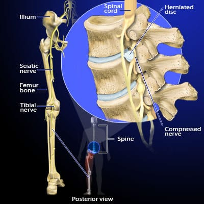 Spine Anatomy With Ruptured Disk