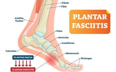 As summer activities go into high-gear, watch out for Plantar Fasciitis